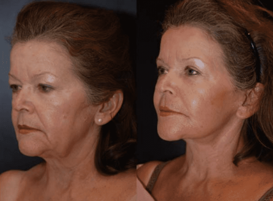 Facelift in Baltimore Maryland | Dr. Dean Kane