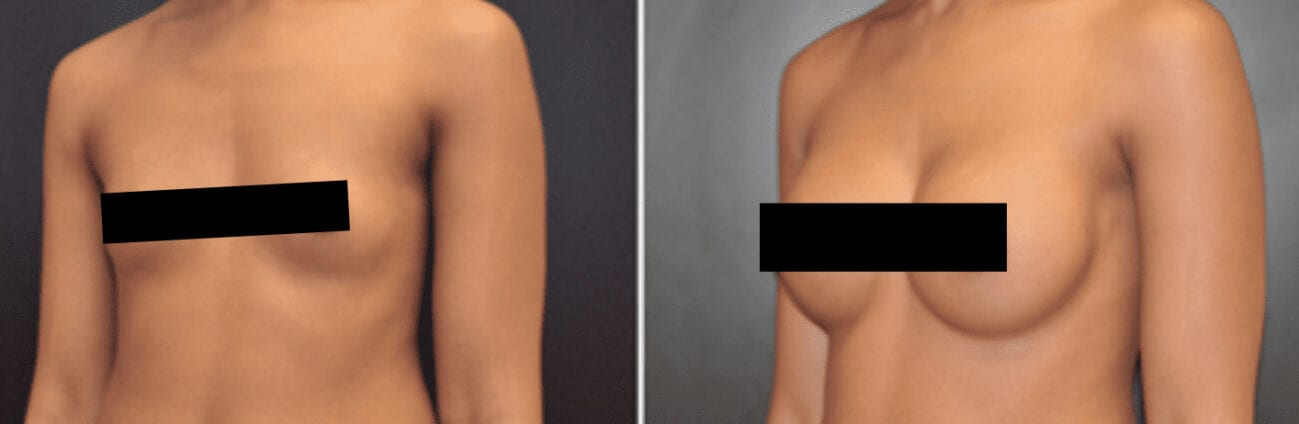 Centerforcosmeticsurgeryandmedispa_kane_baltimore_censored_breastaugmentation0