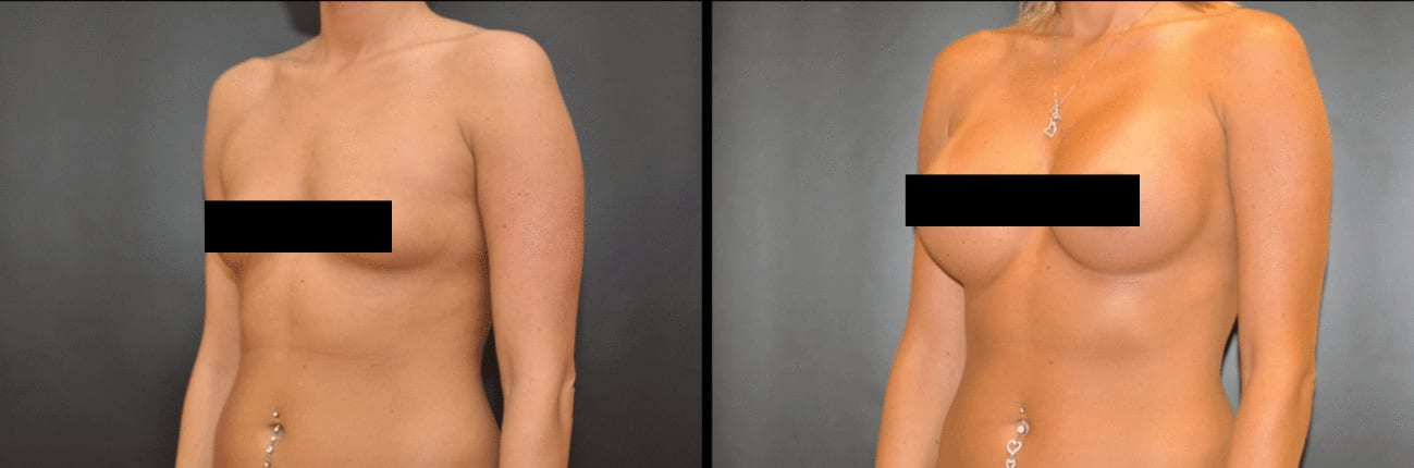 Centerforcosmeticsurgeryandmedispa_kane_baltimore_censored_breastaugmentation1