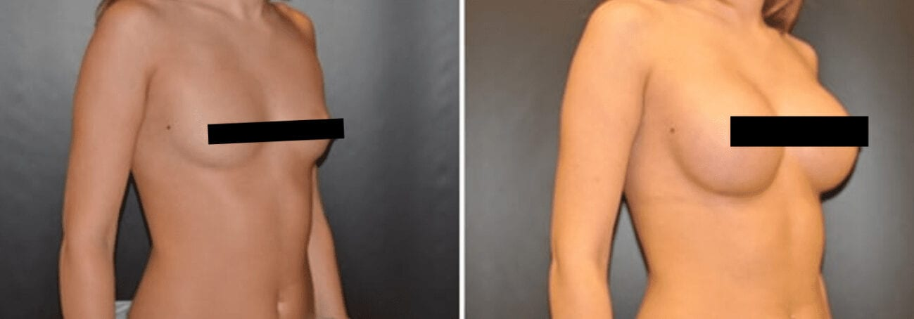 Centerforcosmeticsurgeryandmedispa_kane_baltimore_censored_breastaugmentation2