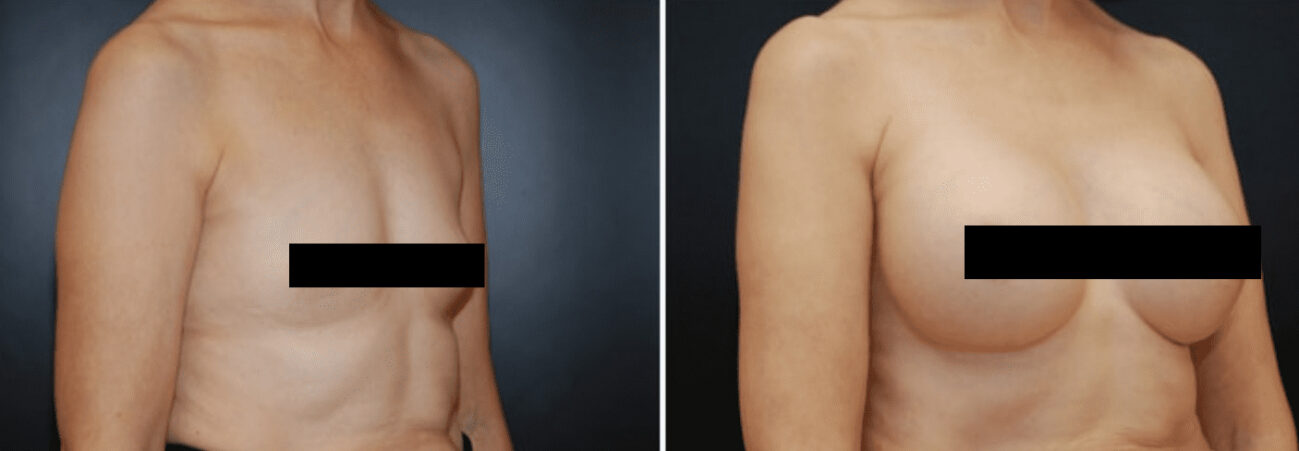 Centerforcosmeticsurgeryandmedispa_kane_baltimore_censored_breastaugmentation4