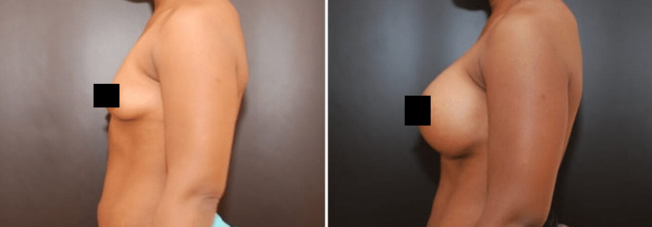 Centerforcosmeticsurgeryandmedispa_kane_baltimore_censored_breastaugmentation5