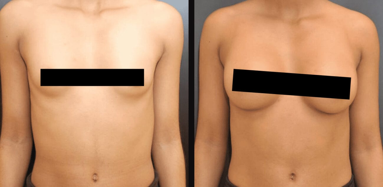 Centerforcosmeticsurgeryandmedispa_kane_baltimore_censored_breastaugmentation6