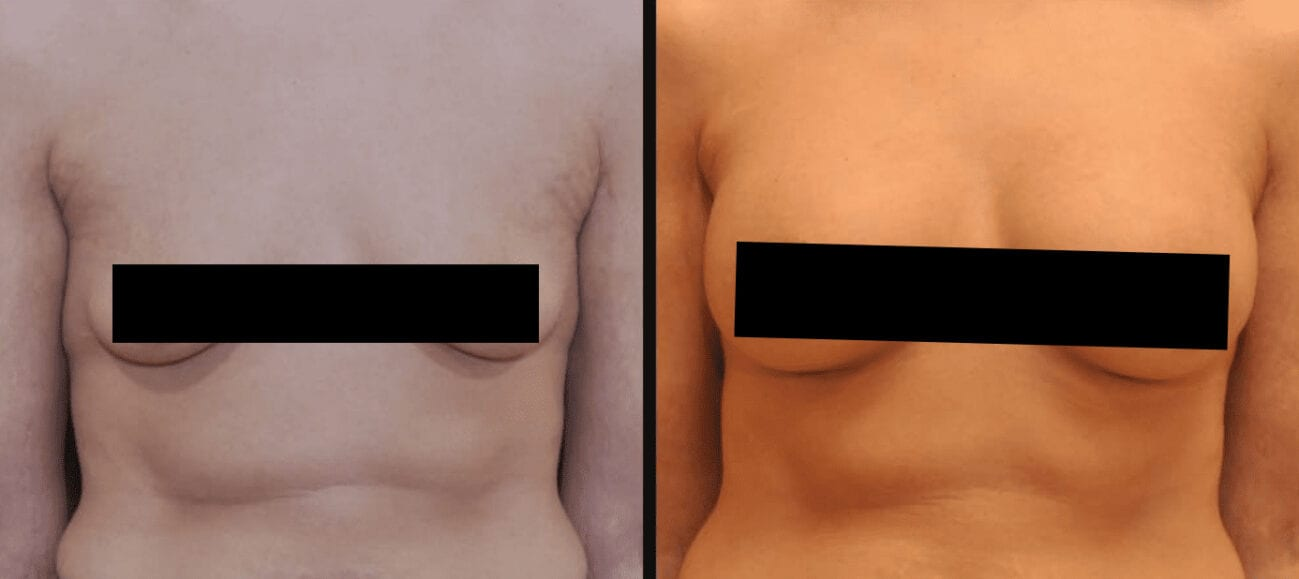 Centerforcosmeticsurgeryandmedispa_kane_baltimore_censored_breastaugmentation7
