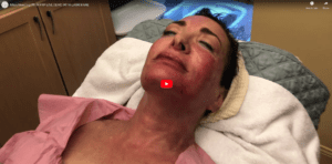 MicroNeedling WITH PRP LIVE DEMO WITH LAURI KANE