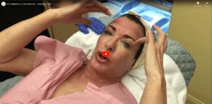 MicroNeedling vs Chemical Peel - Facial Skin Care