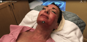 MicroNeedling with PRP Demonstration