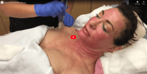MicroNeedling with PRP - Skin Care