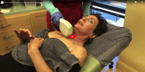 Part 2- IPL at Dr. Dean Kane's Center for Cosmetic Surgery and MediSpa