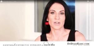 Sculptra Patient Story | Jen Seidel