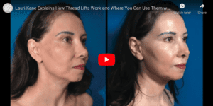 lauri explains how threadlifts work and where to use them